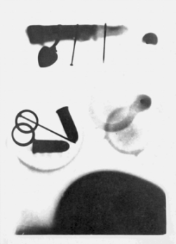 Three students at Davidson College surreptitiously made this X-ray of several objects, including the finger of a cadaver (top), on 12 Jan. 1896. Their X-ray is thought to be the first made in the South. Courtesy of the Davidson College Archives.